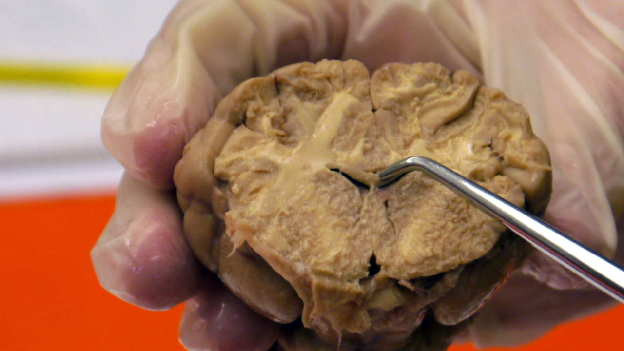 Sheep Brain Dissection | Project NEURON | University of Illinois